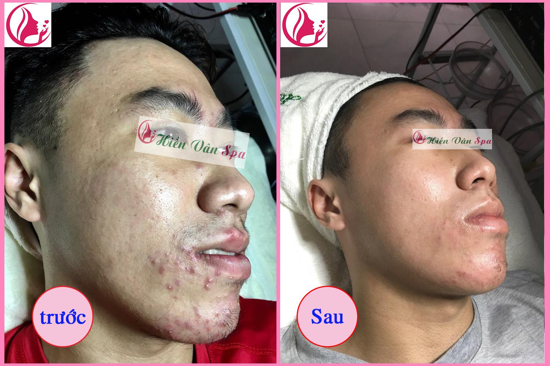 cách trị mụn bọc dưới mũi
