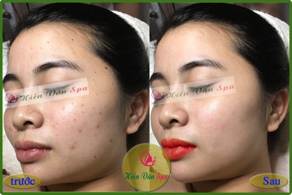 Cảm Nhận của bạn LiLy Hoa sau khi điều trị Mụn Thâm1 (2)