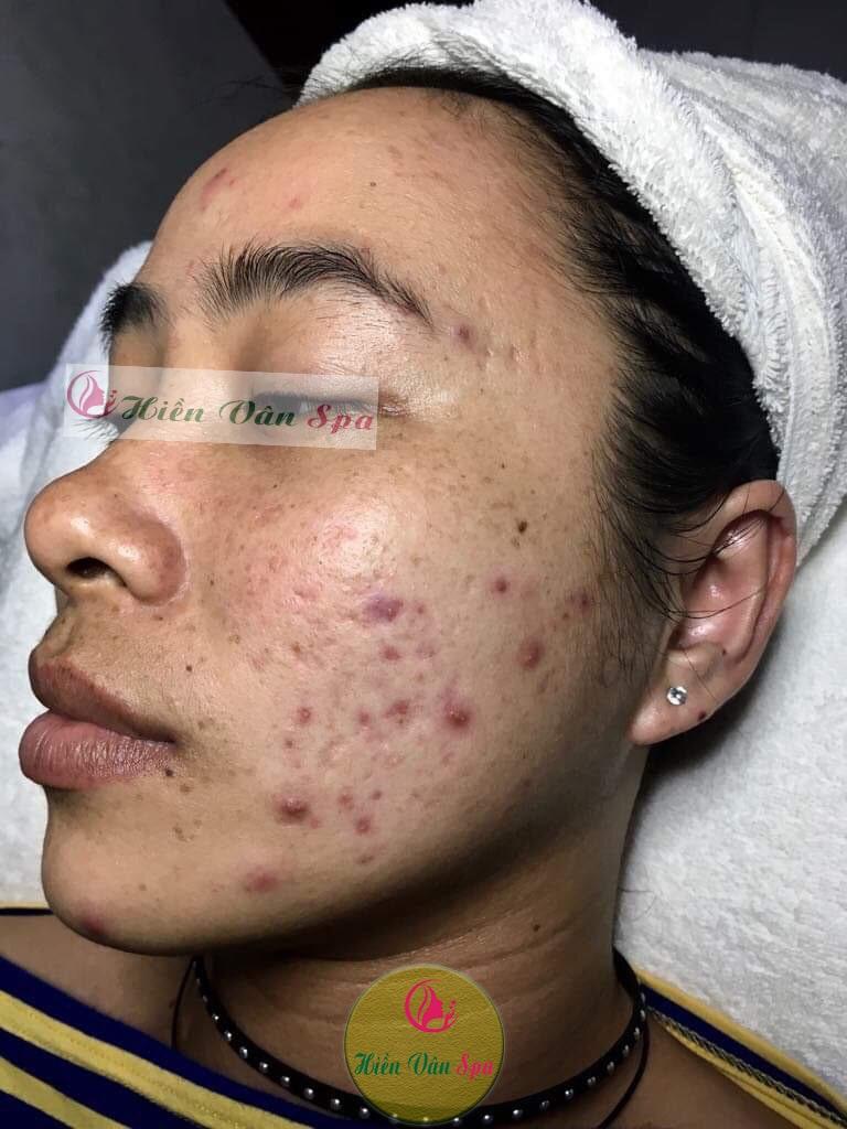 Hình ảnh khách hàng bị mụn trước khi điều trị tại HIỀN VÂN SPA