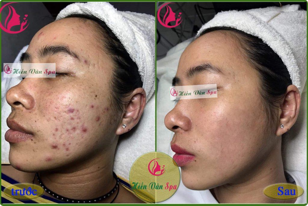 Hình ảnh khách hàng trước và sau khi điều trị mụn tại Hiền Vân Spa-min
